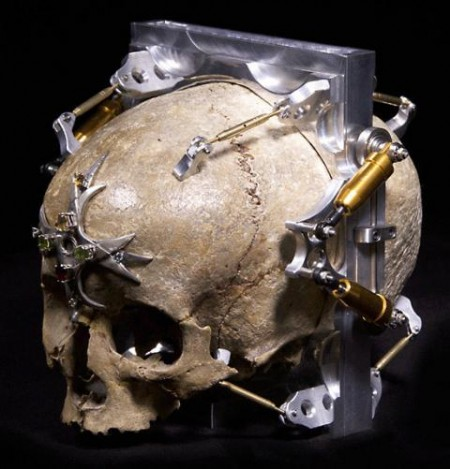 150 Year Old Skull Made Into Pinhole Camera
